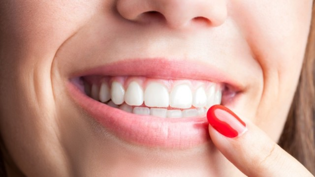 Visit Dentist in Milpitas, CA to Know About Dental Bonding
