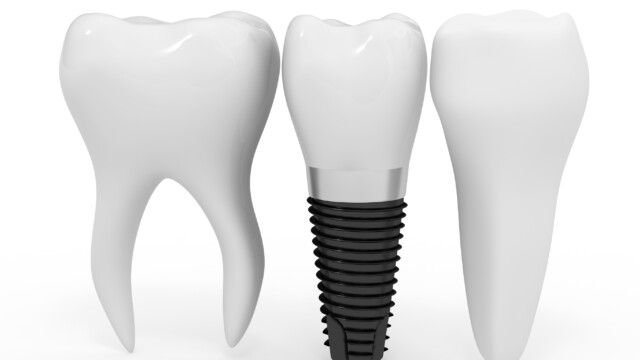 Santa Clara Dental Implants – Merits and Demerits