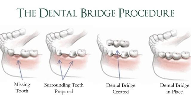 Famous Santa Clara Restorative Dentistry to Fix Dental Troubles