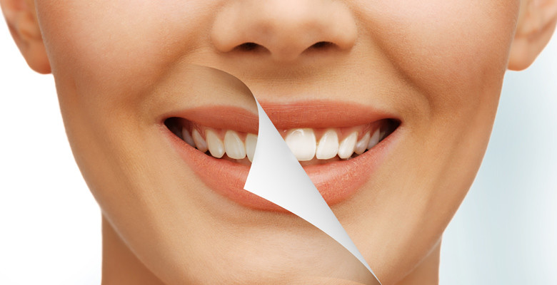 Services of Cosmetic Dentistry for Santa Clara People
