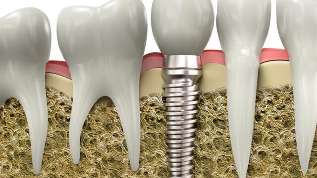 Dental Implants