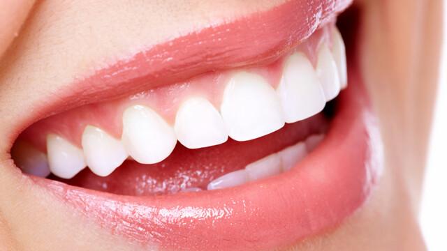 Gummy Smile Correction