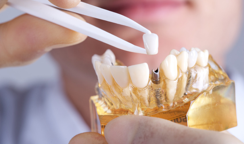 Choose Best Dental Implant Dentist to Avoid Complications