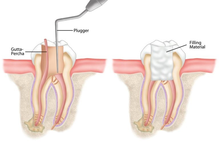 Root Canal Therapy in Santa Clara to Treat the Illness from the Root